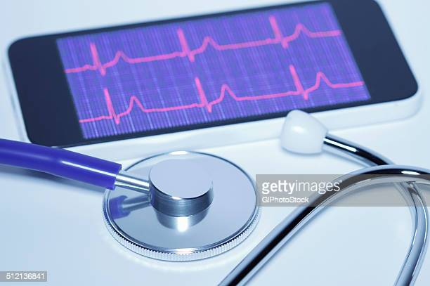 An acoustic stethoscope and smartphone screen displaying an electrocardiogram