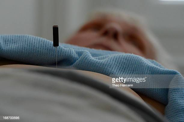 An acupuncture needle protrudes from the belly of an elderly patient of medical doctor Amin Ballouz at his practice on April 30 2013 in Schwedt...