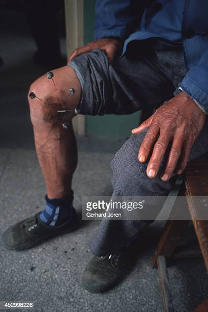 An acupuncture treatment centre at a hospital in Qibao district near Shanghai Burning herbs were applied to acupuncture needles on the man's knee...