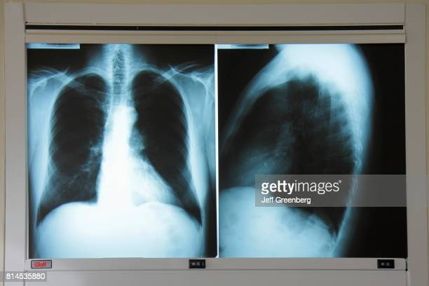 An adult male chest xray at Mount Sinai Medical Center