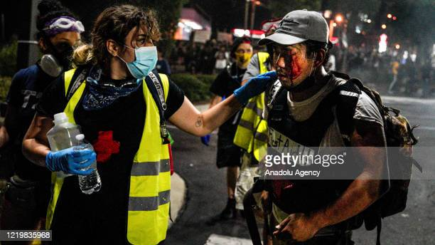 An affected demonstrator is seen after police officers' interventions following demonstrators set on fire a restaurant during the protest after an...