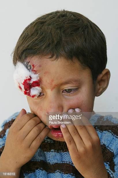 An Afghan boy with Leishmaniasis is disraught after receiving painful treatment at the Health Net Clinic October 23 2002 in Kabul Afghanistan...