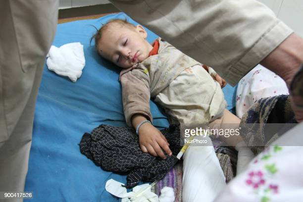 An Afghan child who was injured in airstrikes in Haska Mina district receives medical treatment at a hospital in Jalalabad Afghanistan 02 January...