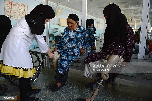 An Afghan doctor checks the leg of a survivor of a landmine at one of the International Committee of the Red Cross hospitals for war victims and the...