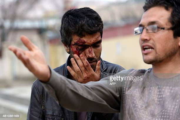 An Afghan man who was injured during an attack on a guesthouse by Taliban gunmen leaves the scene of the attack in Kabul on March 28 2014 Gunfire and...