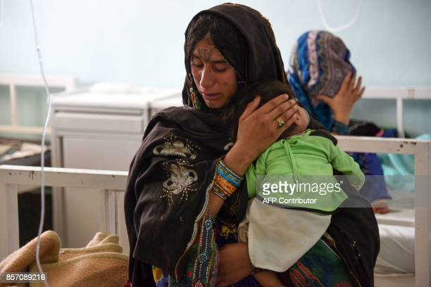 An Afghan mother holds her child suffering from severe malnutrition at a hospital in Kandahar province on October 3 2017 Families bring malnourished...