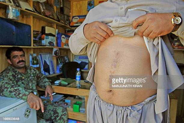 An Afghan National Army officer looks on as 34yearold Ziarmal Barikzai shows the scars on his abdomen caused by a Improvised Explosive Device planted...