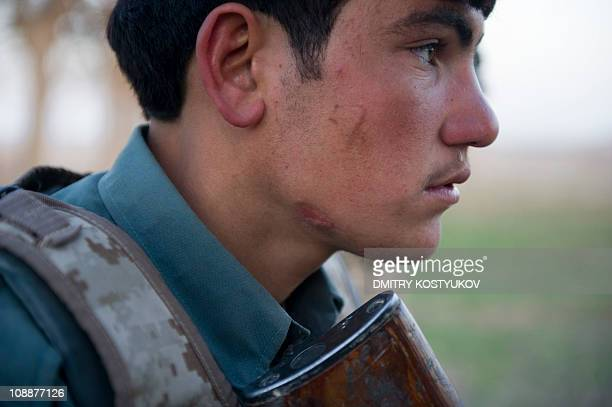 An Afghan National Police man shows the scars left on his face from an improvised explosive device blast as he patrols with NATO tropps the area...
