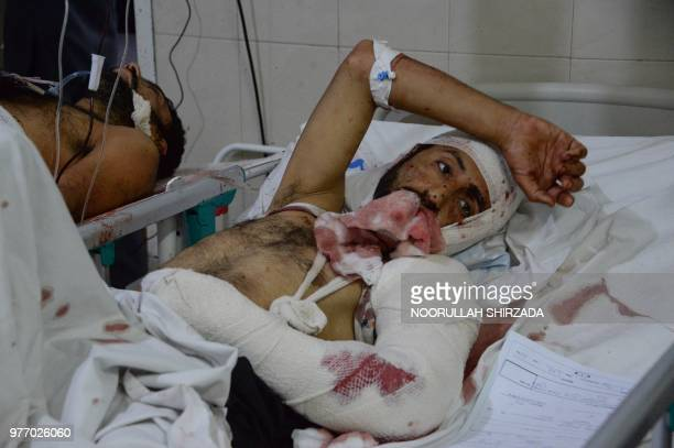 An Afghan victim receives treatments at an hospital following a suicide attack in Jalalabad on June 17 2018 A suicide attack in restive eastern...