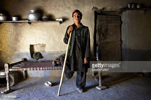 An Afghan villager who lost his leg due to lack of medical facilities in his village stands by as unseen US Army soldiers from 2506 Infantry 101st...