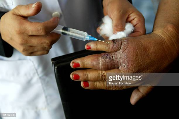 An Afghan woman gets treated for Leishmaniasis on her hand with an injection of Pentostam at the Health Net Clinic October 23 2002 in Kabul...
