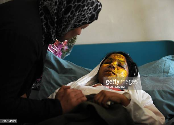 An Afghan woman talks with acid attack victim Shamsia as she rests on a hospital bed in Kabul on November 15 2008 Attackers used a water pistol to...