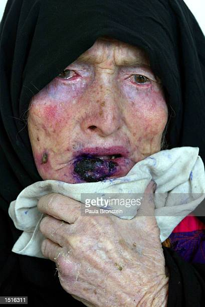 An Afghan woman with Leishmaniasis is disraught after receiving painful treatment at the Health Net Clinic October 23 2002 in Kabul Afghanistan...