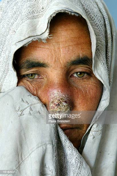 An Afghan woman with Leishmaniasis is disraught after the painful treatment at the Health Net Clinic October 23 2002 in Kabul Afghanistan...