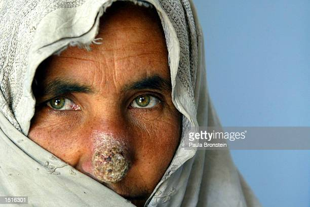 An Afghan woman with Leishmaniasis waits for treatment at the Health Net Clinic October 23, 2002 in Kabul, Afghanistan. Leishmaniasis is caused by a...