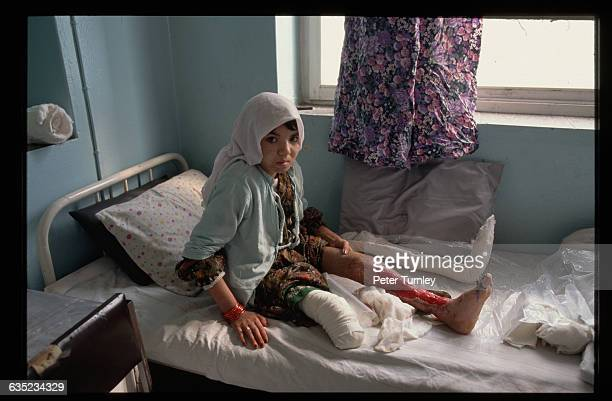 An Afghanistani girl in a Red Cross hospital has her cast removed showing extensive injuries on the one leg she still has Her injuries were caused by...