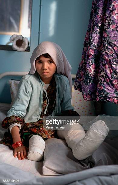 An Afghanistani girl in a Red Cross hospital with a cast on the one leg she still has Her injuries were caused by a land mine