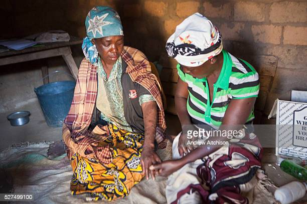 An African woman who is very unwell shows her skin condition to her visiting friend and carer in a small village in Manica District Mozambique The...