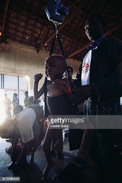 An aid worker from Medecins sans Frontieres weighs a young child suffering from malnutrition at a therapeutic feeding center in Camacupa Angola After...