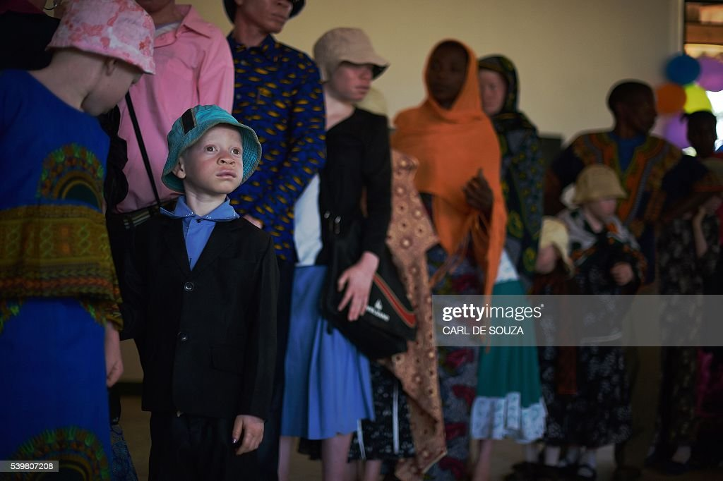 TANZANIA-ALBINOS-AFRICA-HUMAN-RIGHTS : News Photo