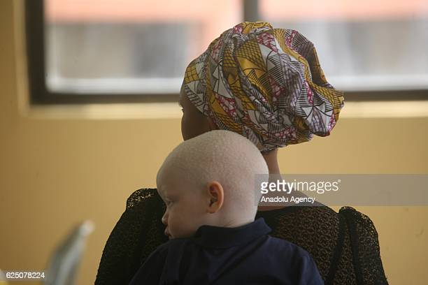 An albino kid and his mother get a visual test as part of programmes to expand social awareness for albino people by Albino Foundation in Lagos...