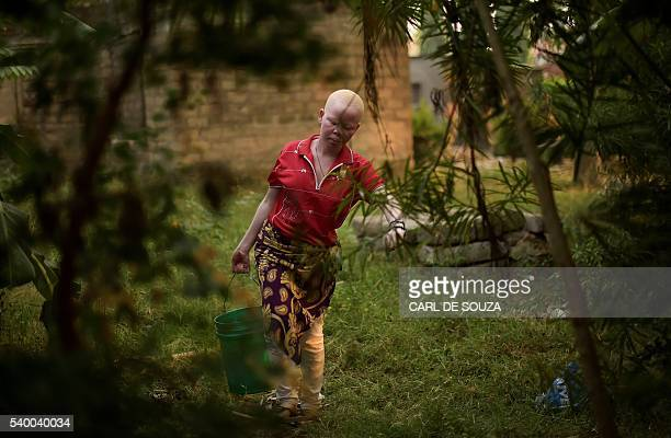 An albino woman fetches water on Ukerewe Island Lake Victoria on June 14 2016 Ukerewe island is home to many albinos many of the first ones to live...