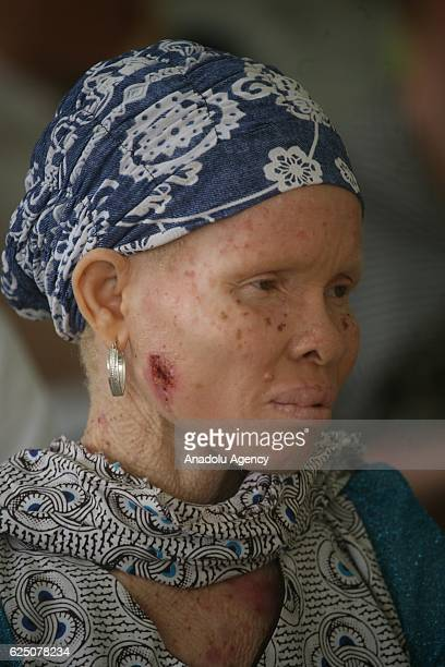 An albino woman gets a visual test as part of programmes to expand social awareness for albino people by Albino Foundation in Lagos Nigeria on...