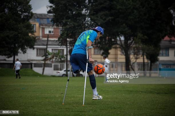 An amputee soccer player from Colombia is seen during training period at the Public sports grounds in Bogota Colombia on October 29 2017 The public...