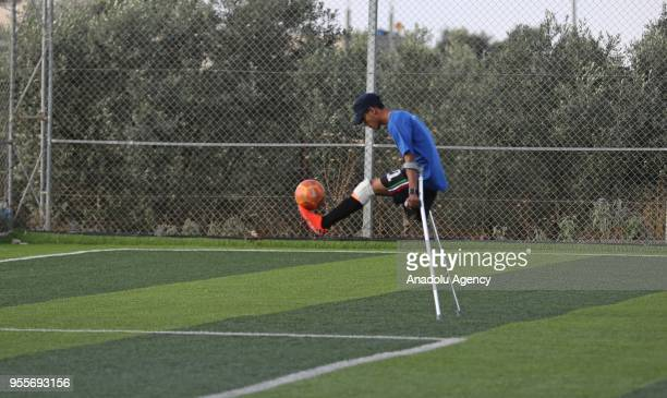 An amputee soccer player who lost his leg during Israel's assaults towards Gaza of The Crutches which is Gaza's first soccer team for amputees...