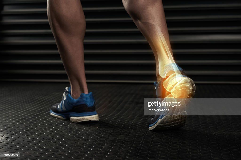 An ankle is useless if it can't take any weight : Stock Photo
