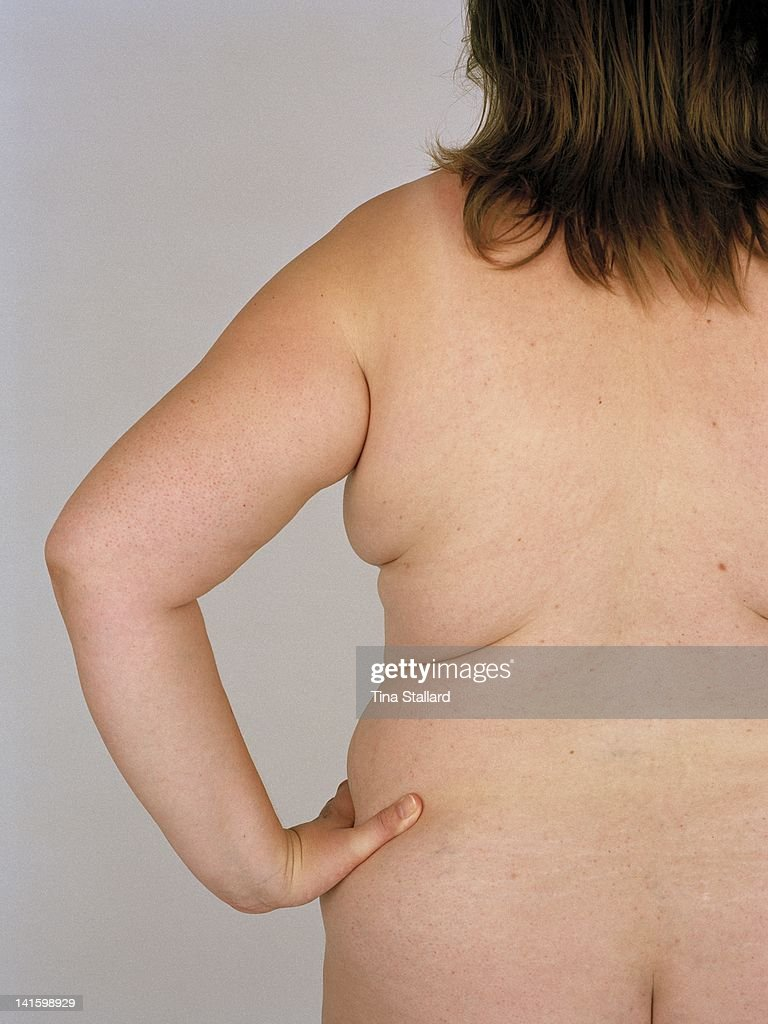 An anonymous woman, 42, before her weight loss surgery. She weighs nearly 20 stone (126kg) and is severely obese. She hopes to lose around a third of her weight by having a gastric band fitted.