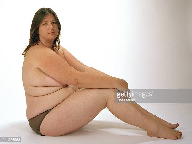 An anonymous woman before her weight loss surgery She weighs nearly 20 stone and is severely obese She hopes to lose around a third of her weight by...