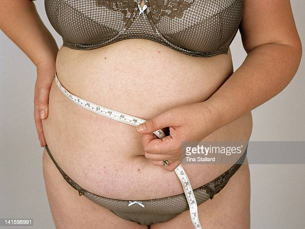An anonymous woman before her weight loss surgery. She weighs nearly 20 stone and is severely obese. She hopes to lose around a third of her weight...