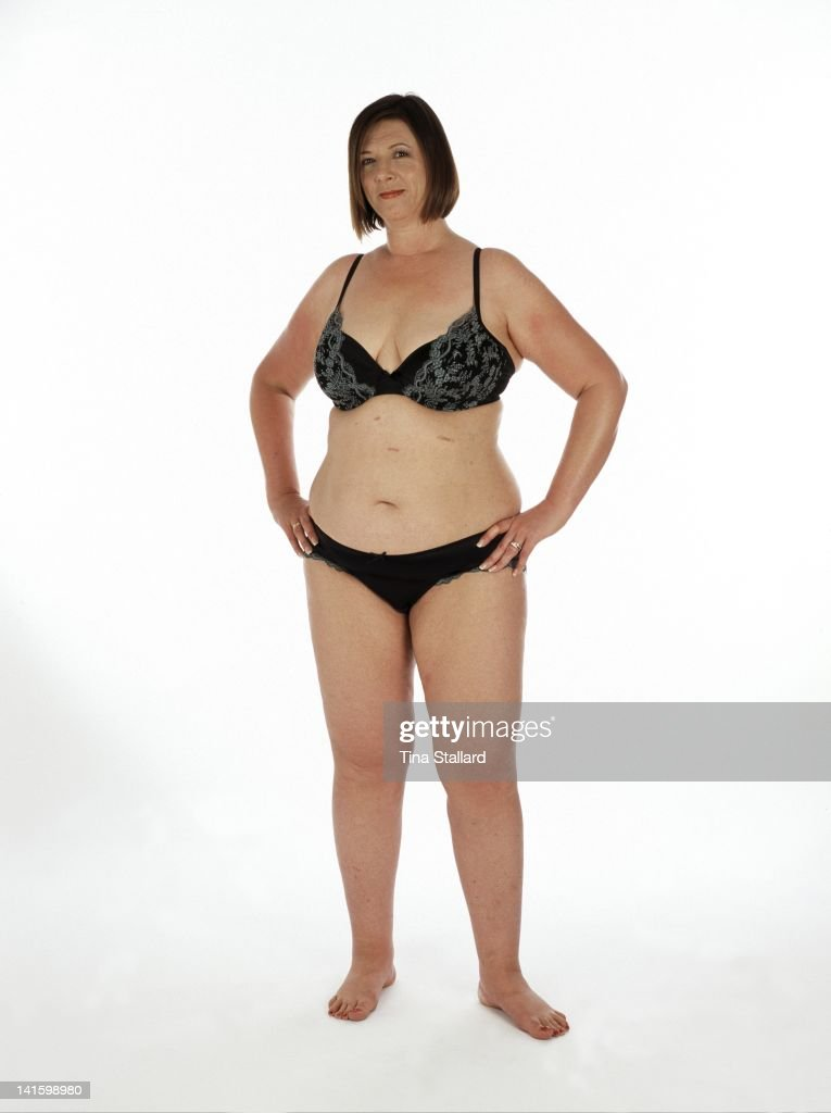 An anonymous woman (44) nearly two years after she had a gastric band fitted to help her lose weight. The scars on her stomach are from the operation. She originally weighed nearly 20 stone (126kg) and was severely obese. Since then she she has lost three stone (19kg) but is still obese. She needs to lose a further four stone (25kg) to be a healthy weight.