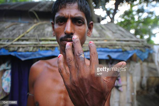 An anthraxinfected Bangladeshi shows anthrax lesions on his hand in Narayanganj district some 20 kms south of the capital Dhaka on September 15 2010...