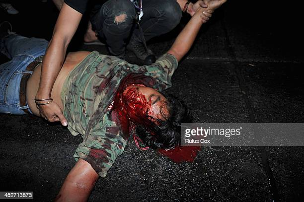 An antigovernment protester lies injured with a gunshot wound to the head outside Rajamala Stadium where the rival Red Shirts are holding a...