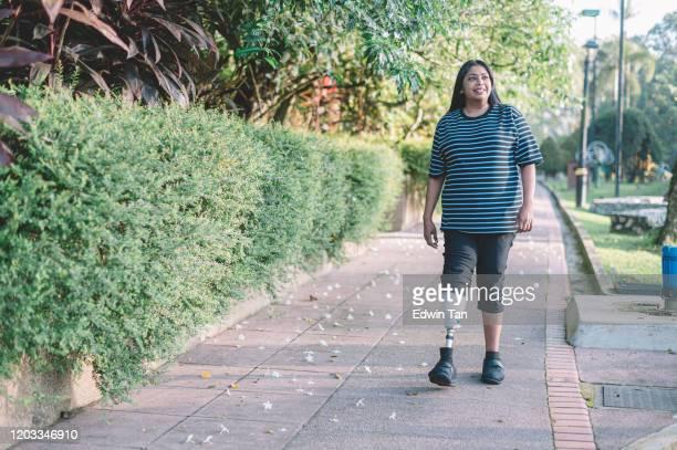 公共公園の朝のセッションでジョギングをする義足スポーツ女性と障害を持つアジアのインド人 - 四肢切断 ストックフォトと画像