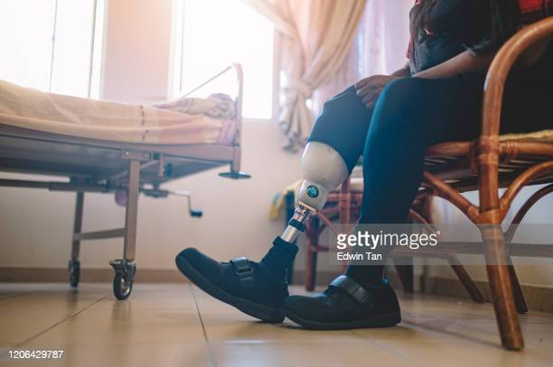 an asian indian person with prosthetic leg adjusting her artificial limb at hospital ward - diabetic amputation stock pictures, royalty-free photos & images