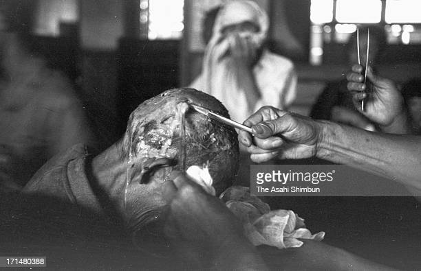 An atomic bomb surviver receives a treatment at temporary hospital set at Kozen Elementary School in August 1945 in Nagasaki, Japan. The world's...