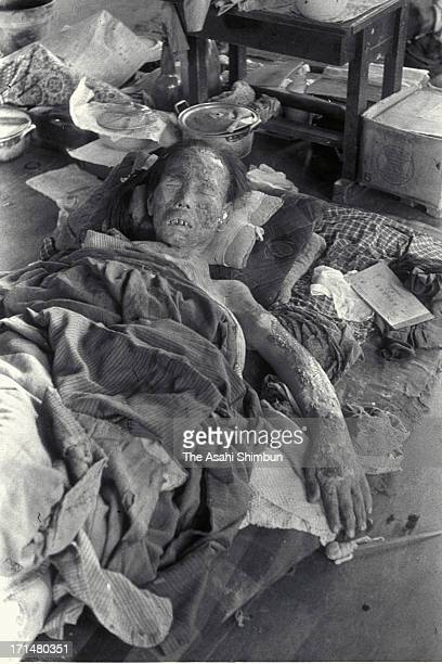 An atomic bomb surviver, who suffers serious burns onto her face and an arm by Nagasaki atomic bomb, lies for a treatment at temporary hospital set...