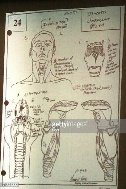 An autopsy drawing of the head and tongue of actress Lana Clarkson showing trauma to the tongue is entered as evidence for the prosecution during the...