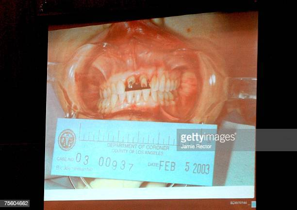 An autopsy photo of Lana Clarkson's mouth showing teeth damaged from a gunshot wound is shown Phil Spector's murder trial in Superior Court July 23,...