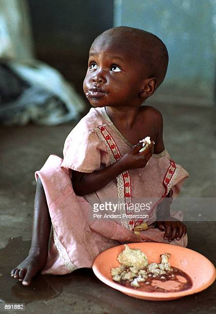 An child eats food June 11, 2002 at Mchoka Health Center in Zuwala in Salima district in Malawi. The girl comes to the center with her mother daily...