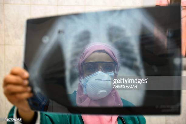 An Egyptian doctor wearing two protective masks checks a patient's lung X-ray at the infectious diseases unit of the Imbaba hospital in the capital...