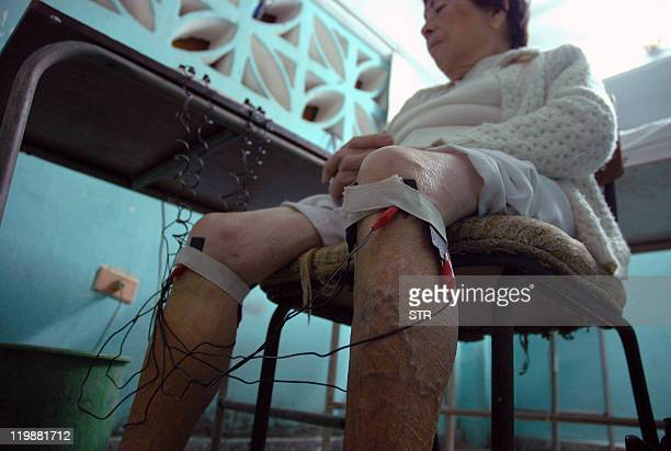 An elder woman is treated with electroacupuncture on December 17 2010 at a hospital in Havana AFP PHOTO/STR