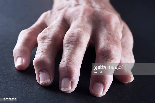 An elderly hand with Rheumatoid Arthritis