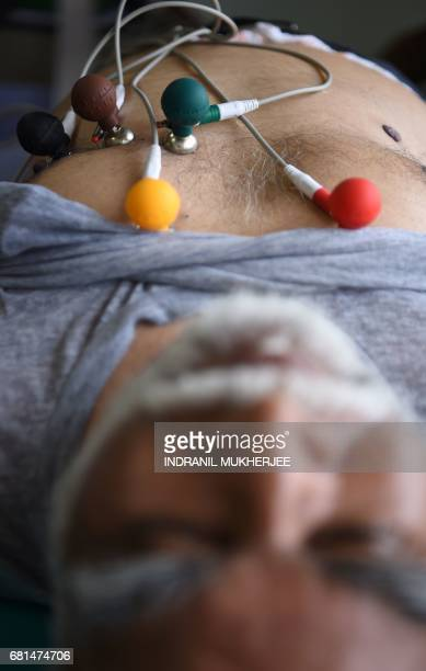 An elderly Indian patient receives an Electrocardiograph inside a 'One Rupee Clinic' emergency medical room in Mumbai on May 10 which charges...