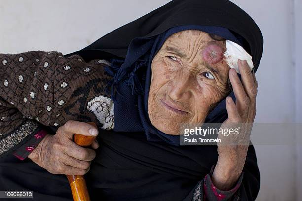 An elderly leishmaniasis patient waits to be treated at a free specialized clinic for leishmaniasis supported by World Health Organization October 25...