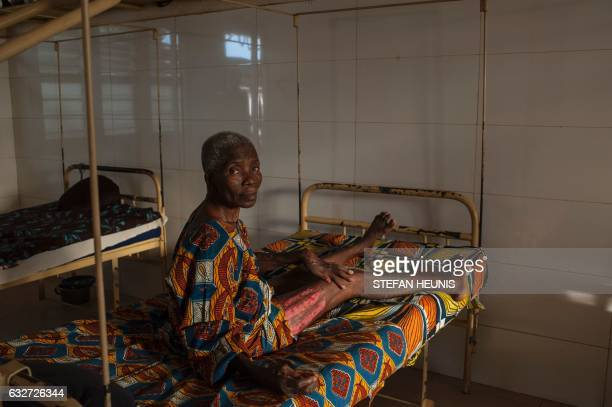 An elderly woman that suffered from Buruli ulcers shows the scars of a skin graft operation she received at the Follereau Foundation for leprosy...