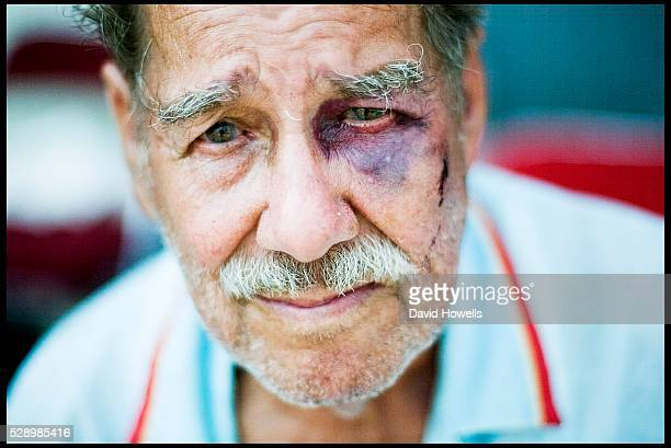 An eldery man with a black eye waits to be evacuated from the New Orleans Convention Center six days after Hurricane Katrina destroyed New Orleans